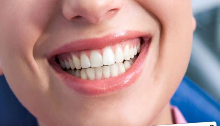 Per rendere luminoso il sorriso